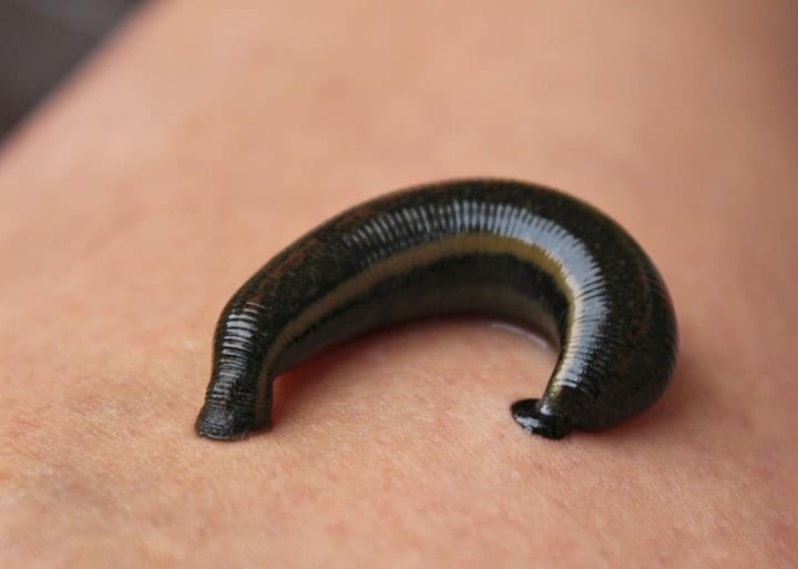 disgusting luxury products, leech therapy